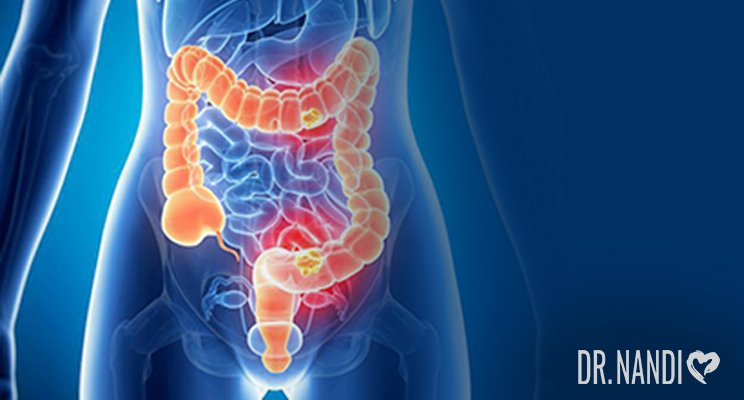 What Is Inflammatory Bowel Disease (IBD)? Symptoms, Causes and Solutions