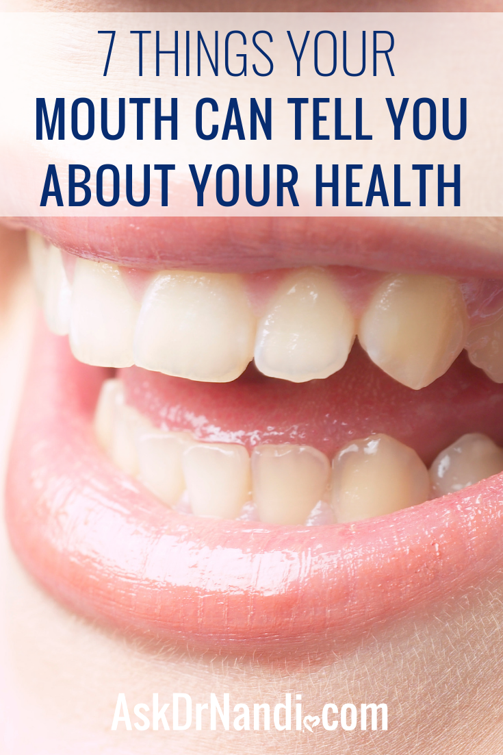 7 Things Your Mouth Can Tell You About Your Health