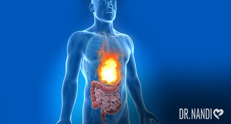 What You Should Know About Acid Reflux