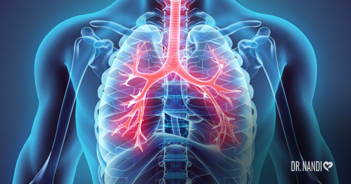 bronchitis, ultimate guide, how to, treat,